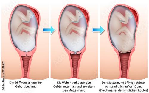 Tabelle Länge Gebärmutterhals
