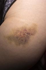 Woman leg bruise