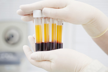 Blood tubes in two layers divided by centrifuge after