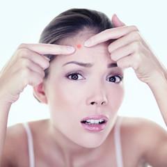 Acne pimple skin blemish spot skin care girl