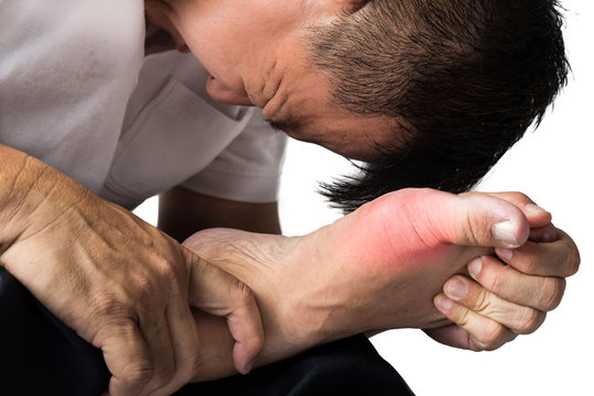 Man with painful and swollen right foot due to gout inflammation