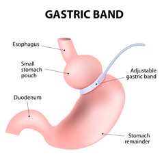 Diagram of an adjustable gastric band