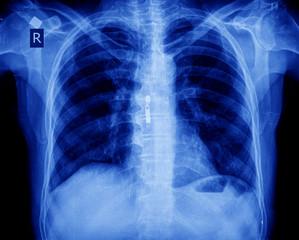 xray of chest