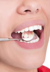 Dentist mirror reflecting inside teeth