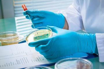Agarplatte besiedelt mit Bakterien im Labor