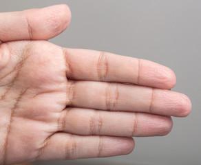 Wrinkled skin of the hands