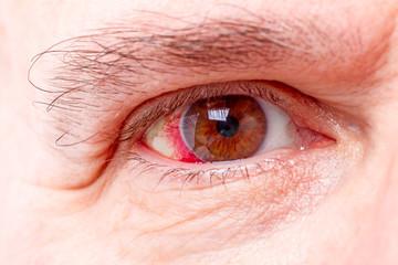 Red human eye