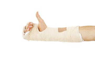 Broken arm bone in cast making OK sign