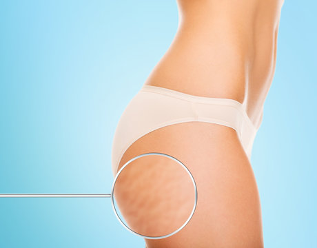 close up of woman buttocks with cellulite