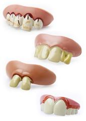 Novelty teeth
