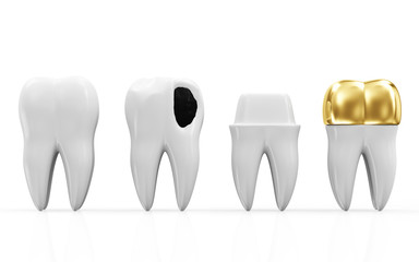 Helath Tooth, Teeth with Caries and Golden Dental Crown