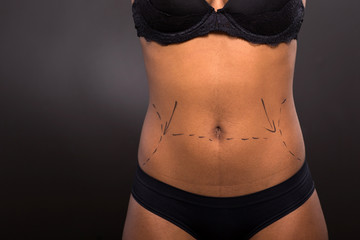 african woman body marked for plastic surgery