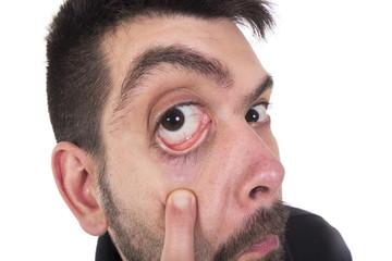 Guy with big eye