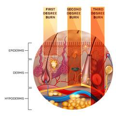 Skin burn classification. First, second and third degree skin bu