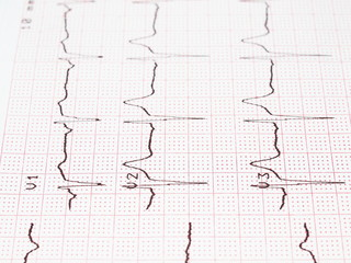 Electrocardiogram, ECG printout, EKG background