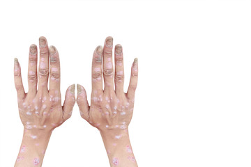 Psoriasis on the palms, fingers and nails of an adult male