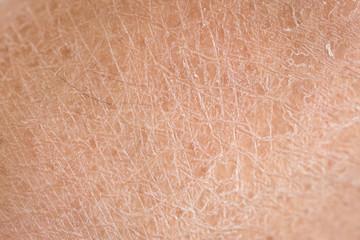 dry skin (ichthyosis) detail