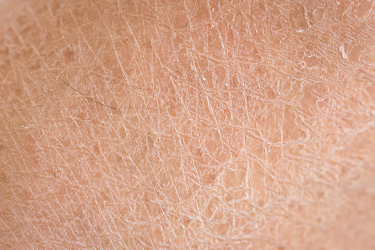 dry skin (ichthyosis) detail