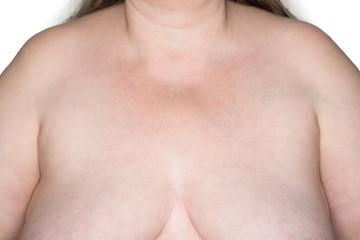 Oberkörper einer Frau vom Hals bis zum Brustansatz