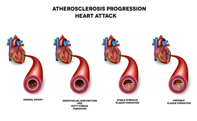 Heart attack, Coronary artery disease. Heart muscle damage