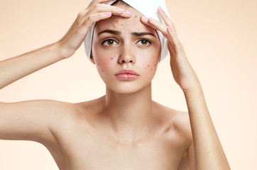 Young woman squeezing her pimple, removing pimple