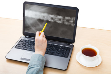 medic analyzes X-ray picture of spine on laptop