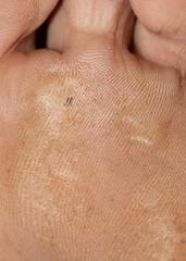 rough skin on feet