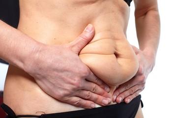 Woman fat belly.