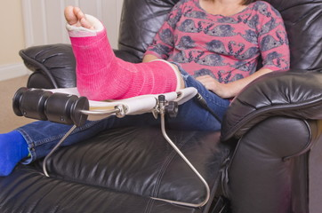 Lady with Fractured Leg on a Elevated Support