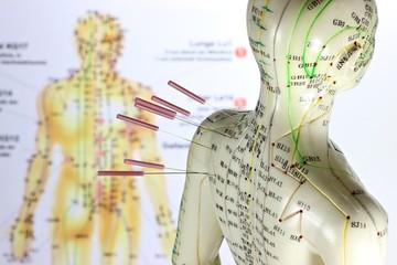 weibliches Akupunkturmodell mit Nadeln im Schulterbereich vor Lehrtafel