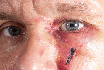 real eye bruise