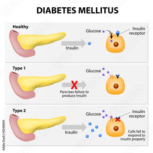 Diabetes mellitus\