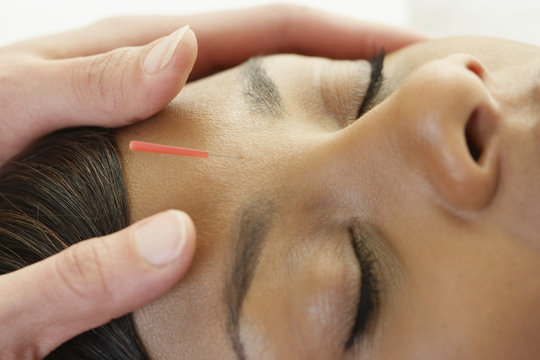 Acupuncture needle in African woman's forehead