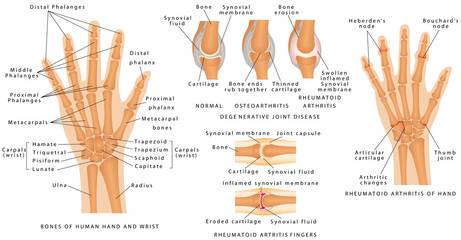 Skeletal System Phalanges