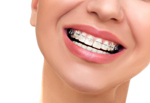 Closeup Beautiful Female Smile with Ceramic and Braces on Teeth.