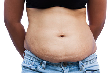Women body with fat belly and stretch marks,front view