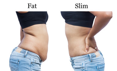 women body  fat and Slim after weight loss