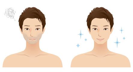 男性 顔 エステ 髭 脱毛
