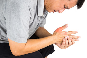 Man with painful and inflamed gout on his hand thumb area