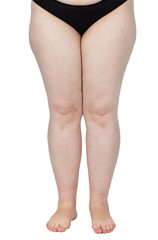 legs obese. Weight problems. trouble walking. płaskosotopie, valgus knee