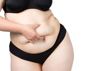 Obese neglected body isolated over white background.