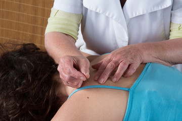 Girl receiving an acupuncture treatment in a health spa