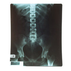 X-Ray image of human for a medical diagnosis
