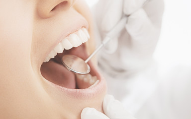 Visita denti bianchi con specchietto