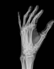 X-ray of both human hand