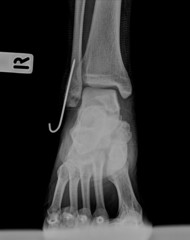 AP x-ray of injured ankle