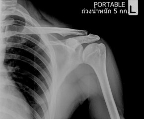 X-ray film of left shoulder fracture ,hold 5kg