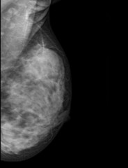 X-ray: Breast Cancer (Mamary tumor)