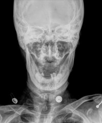 X-ray picture of the skull,open mouth