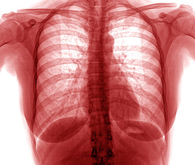 xray of chest , red color
